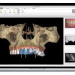 Guidage chirurgical numérique : les implants dentaires